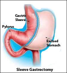 Diagram showing the sleeve gastrectomy procedure and removal of a portion of the stomach.